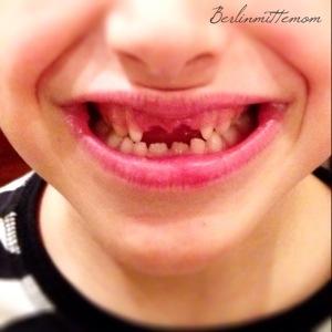 Zahnfee, Wackelzahn, der Zahn ist raus